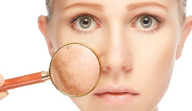 Pigmentation All You Need To Know About Diagnosis And Treatment