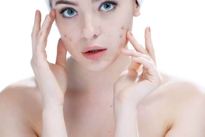 Struggling with spots Salicylic acid is your new BFF
