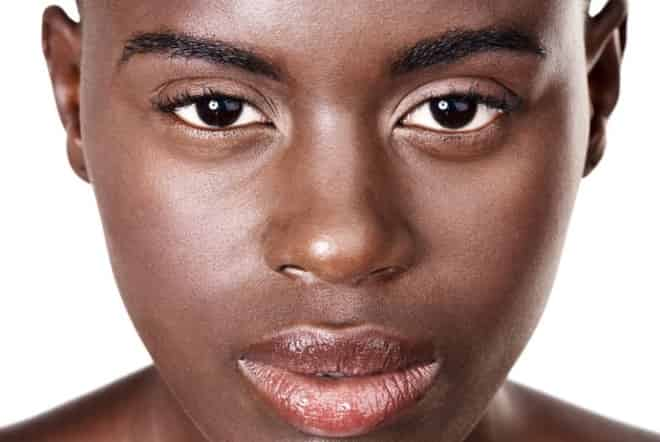Dark Skins You CAN have laser treatments if you have dark skin
