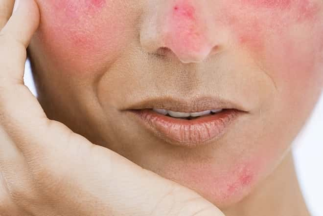 Struggling-with-rosacea-Its-time-to-change-your-diet