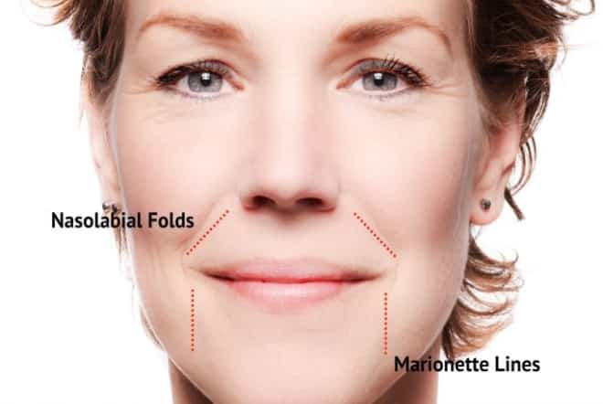 Marionette lines and nasolabial folds - Treat them with injectables!
