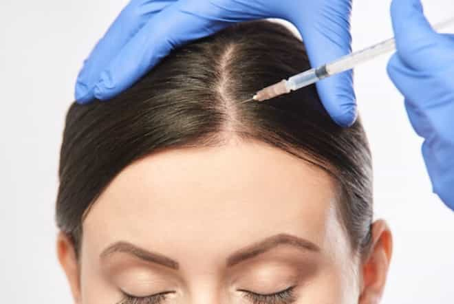 PRP for hair loss: Could this be the solution for you?