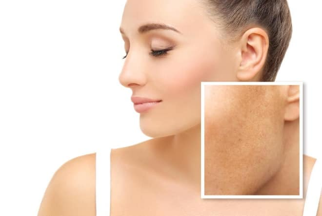 Melasma versus hyperpigmentation and how to treat it