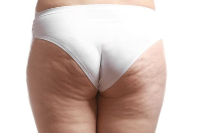 Stubborn cellulite At last A serious solution to improve those dimples