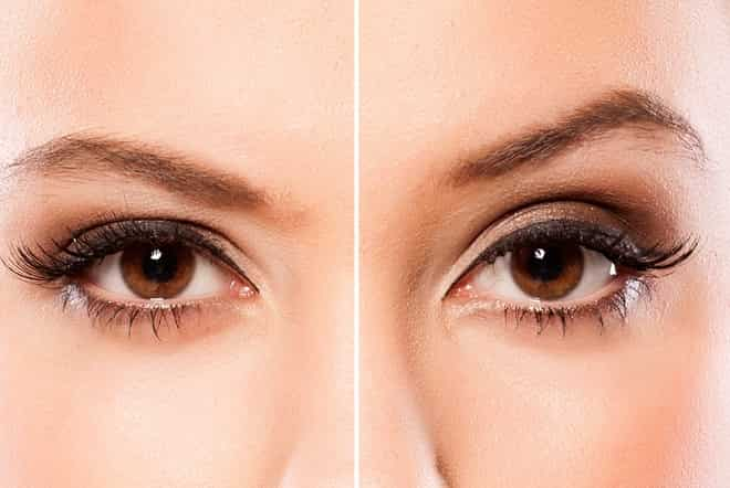 "Brow Lift: How to create ""brow wow"" the non-surgical way"