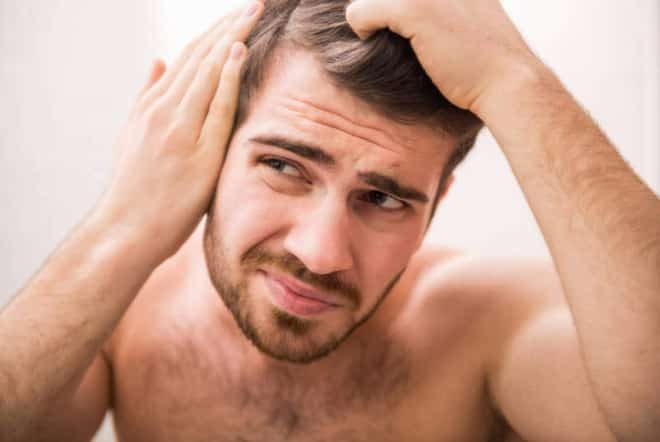 Why Men Go Bald - And Smart Solutions for Hair Loss